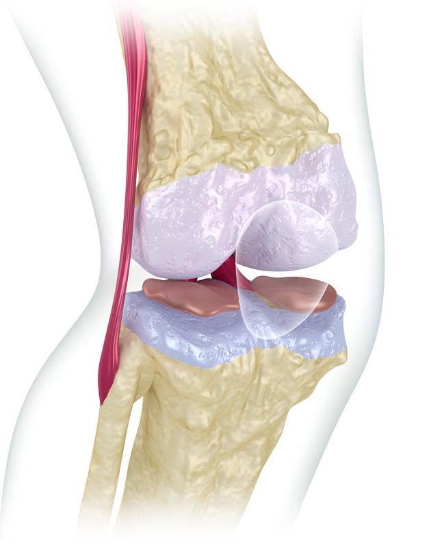medico ortopedista especialista em menisco joelho